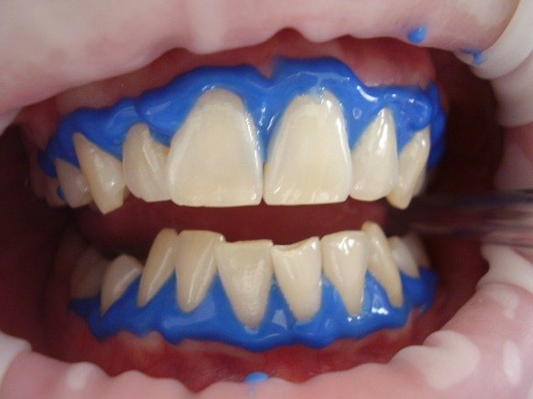 laser-teeth-whitening-716468_640
