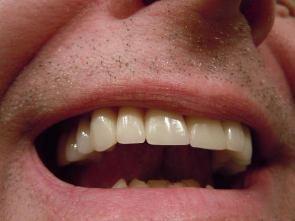 teeth-414489_640